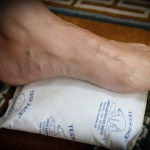 Icing for plantar fasciitis.